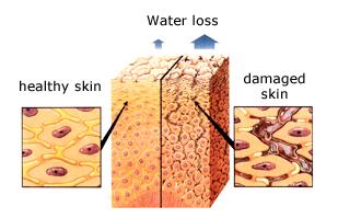 Skin and water loss: Gamp Inc.
